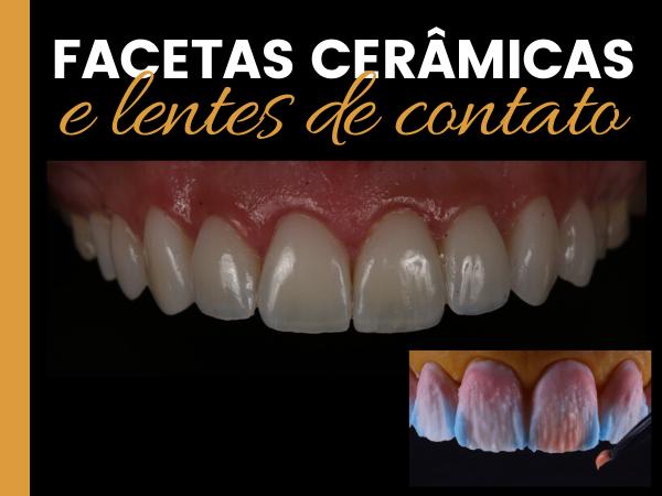 FACETAS CERÂMICAS E LENTES DE CONTATO